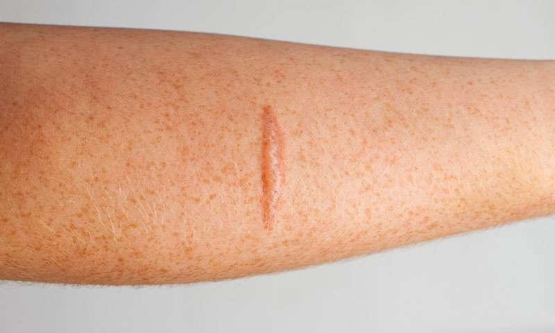 Minor Burn Treatment Home Remedy - Treating First Degree Burns